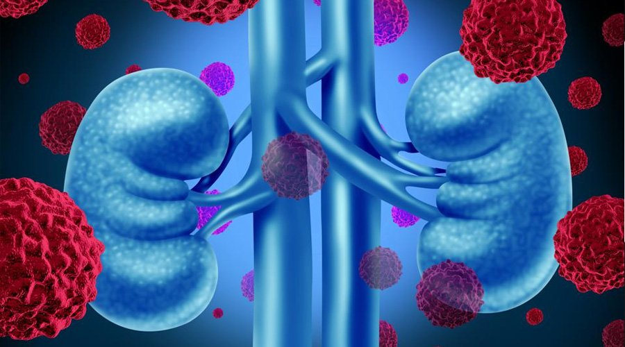 COVID-19 Caused Kidney Complications Can Be Treated By Machine Learning